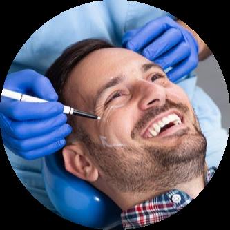 micro-needling-treatment