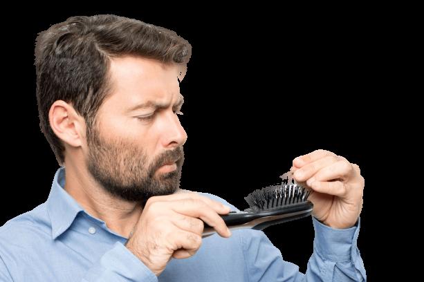 mens hairloss